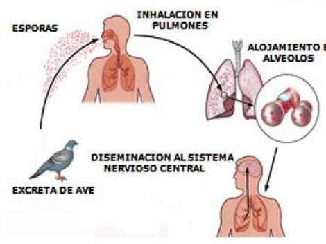 Informe sobre Psitacosis